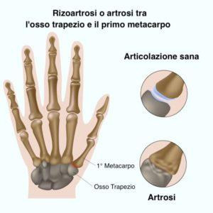 dieta artrosi della mano
